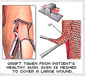 enlarge surgery